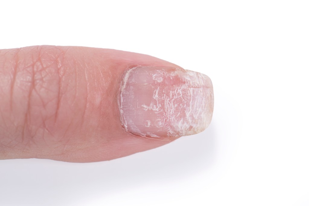 A damaged nail before using Gelie-Cure.