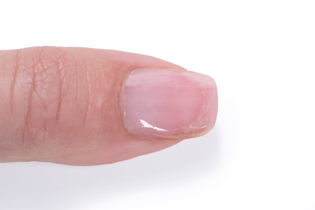 A previously damaged nail after using Gelie-Cure, with a now shiny, smooth surface.