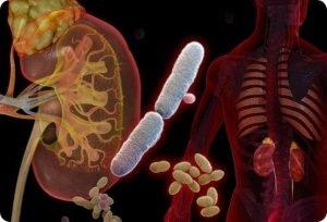 A megnövekedett leukociták okai a vizeletben nőknél és férfiaknál, normatábla, megelőzés
