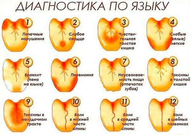 A testen lévő foltok zuzmónak tűnnek: okok és kezelés