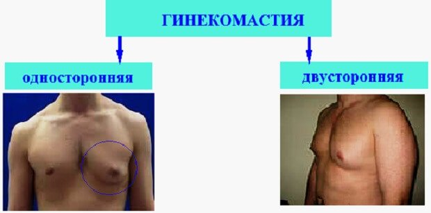 Tricotaj compresiv pentru tratamentul varicozei in salonul OrtoMedico