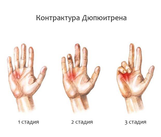 fájdalom az ujj interfalangeális ízületében ízületi ízületi lábkezelés áttekintése