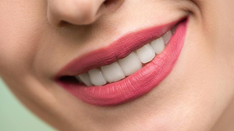 8 Easy Ways To Get Perfect Lips