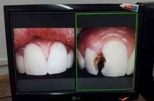 14-year-old Girl with dental problems