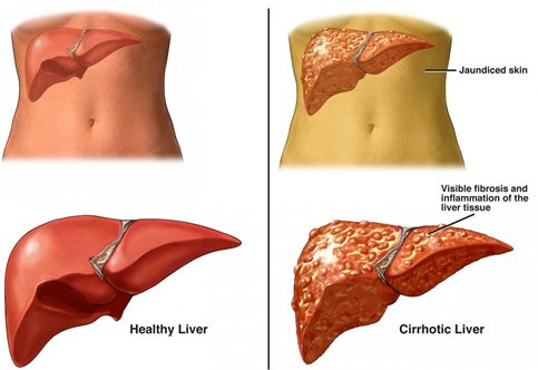 Cirrhosis-of-the-liver-treatment