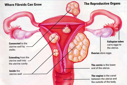 fibroids-grow