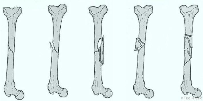 Диагностика травм – как отличить перелом от ушиба пальца руки или ноги. Простой ушиб или страшный перелом: как определить?