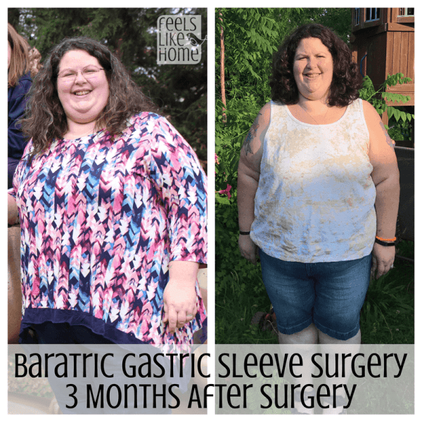 Tara Ziegmont posing for a photo before and after bariatric surgery