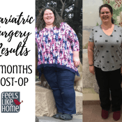Bariatric Gastric Sleeve Surgery Update and Results – 7 Months Post-Op