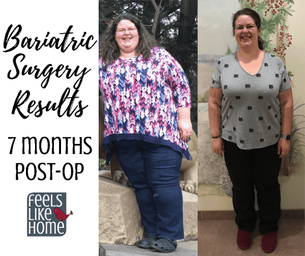 Bariatric Gastric Sleeve Surgery Update And Results 7 Months Post