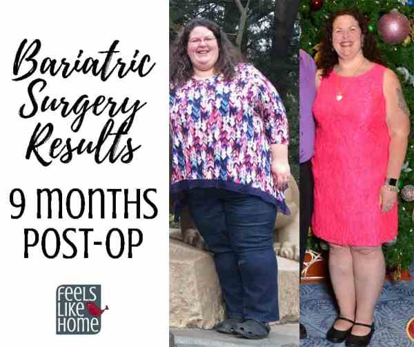 Tara Ziegmont before and after bariatric surgery