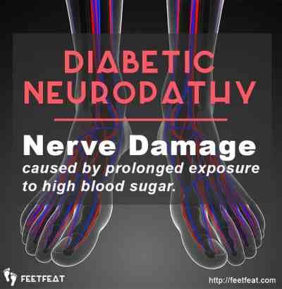 Diabetic Neuropathy Nerve Damage
