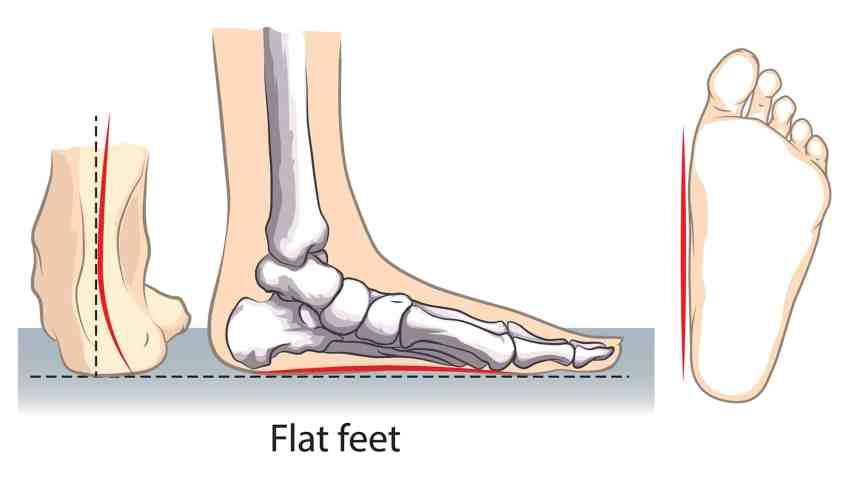 Flat Feet Overpronation