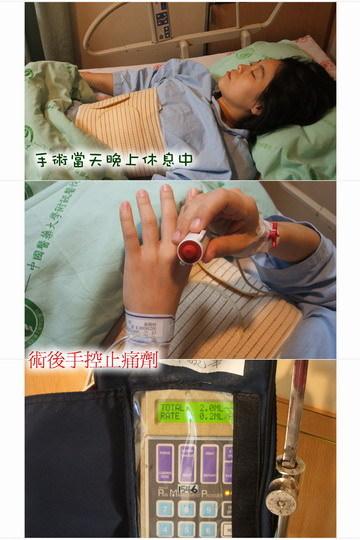 2008卵巢腫瘤手術過程