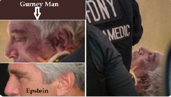 Guard claims Jeffrey Epstein was wheeled out of prison, alive Gurney-man-and-Jeffrey-Epstein