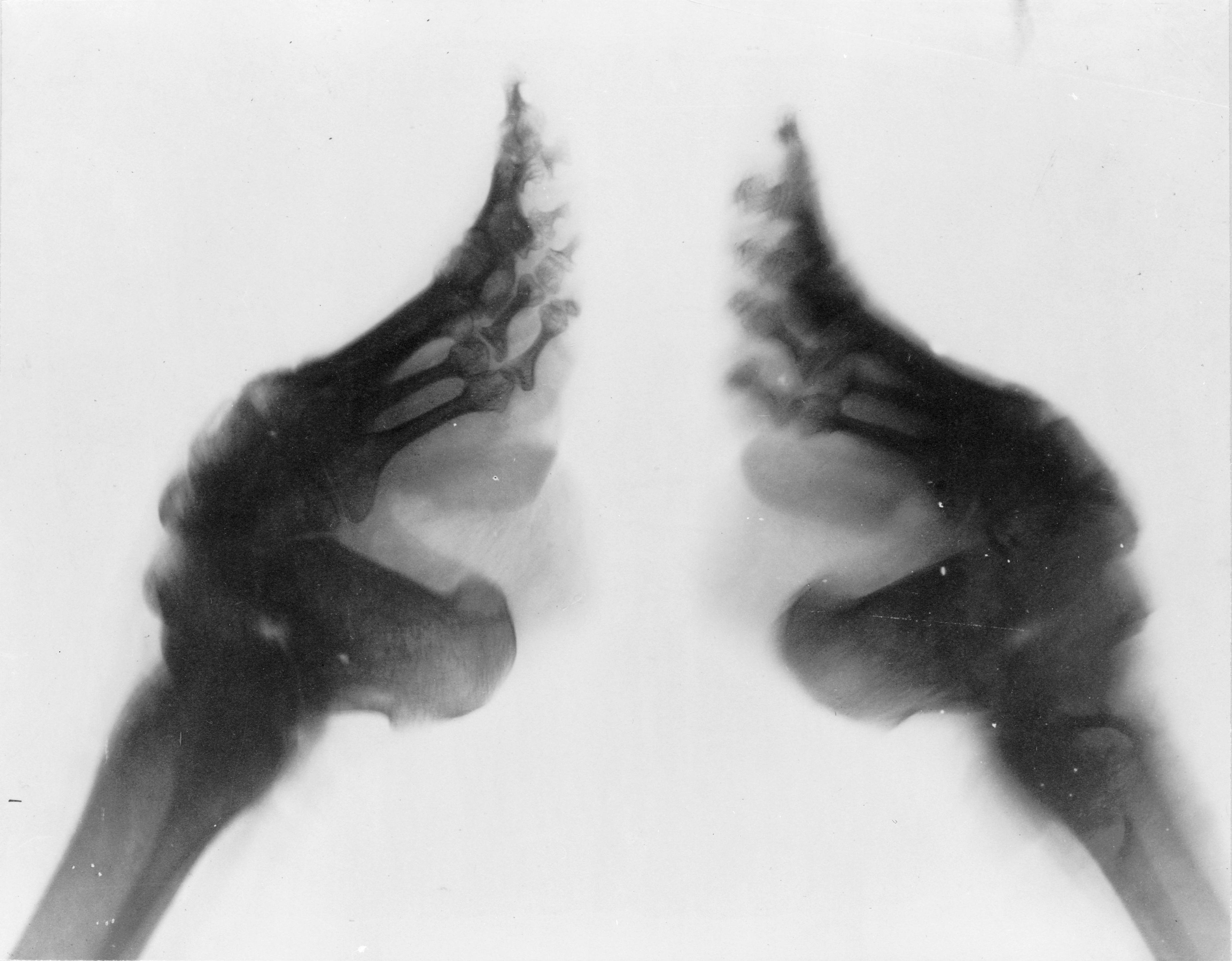 Témoignage sur le bandage des pieds