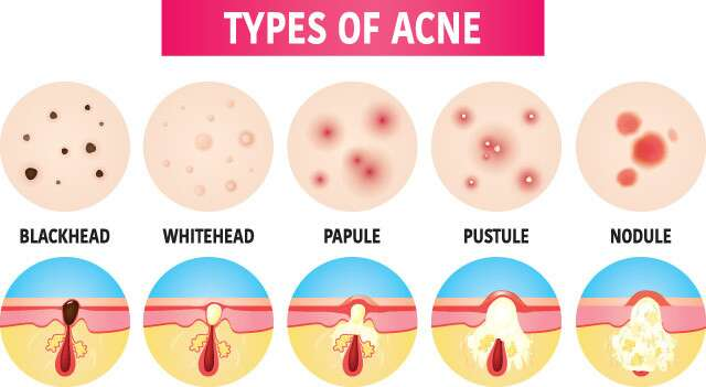 Types of Acne Infographic
