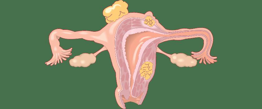 Gebärmutter