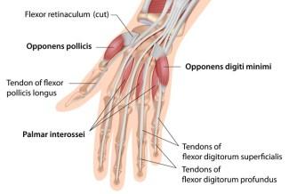 hand-finger-tendon-injury