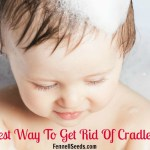 Easiest Way to Get Rid of Cradle Cap. My Favorite Cradle Cap Comb and Brush