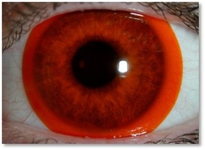 Eyeball with Tinted Contact Lens. Courtesy of photographer. Used with permission from the Vision Research Institute at Ferris State University