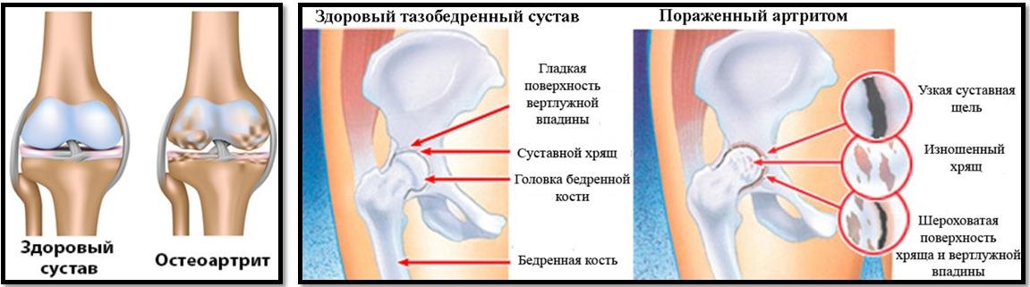 Artroza nu este doar o boală a bătrâneţii!