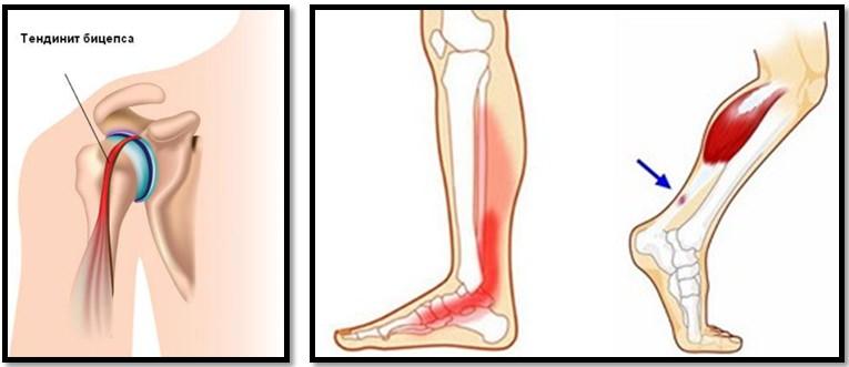 Infiltratii cu acid hialuronic in genunchi | sateleunitealeromaniei.ro Articulația fluidă a genunchiului