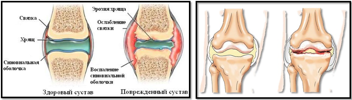 artroza distructivă a articulațiilor condroitină și artroză glucozamină