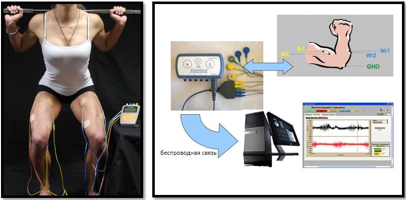 Обследование электромиография. Что такое электронейромиография и как проводится обследование? В чем разница между эмг и энмг