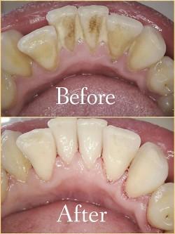 Air Polishing - Ferry Dental Centre - Dentist Southampton ...