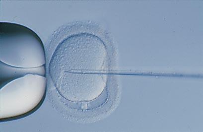 Intracytoplasmic Sperm Injection (ICSI) | Overlake ...