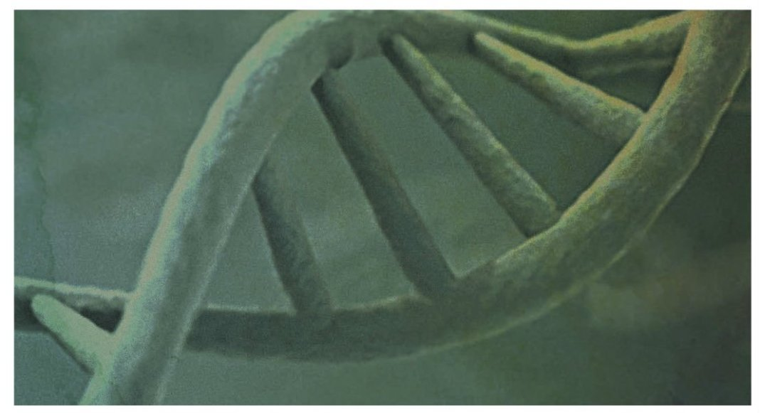 Preventing Familial Cancer With Preimplantation Genetic Diagnosis