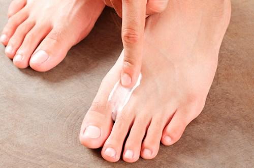 ¿Sabes que es el pie de atleta?