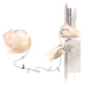 Fetal Hydrocephalus