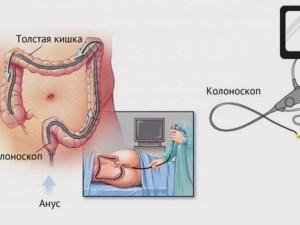 علاج الرحم المقلوب في البيت