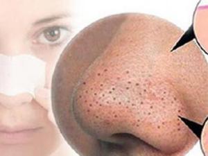 علاج بقع الوجه السوداء او البنية بسرعة بدون جراحة