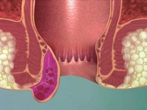 اعراض البواسير عند النساء