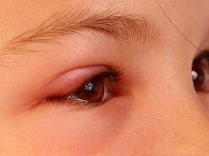 اسباب تورم الوجه والعينين