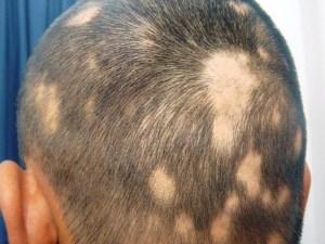 اذكر اسباب مرض ثعلبة الشعر وطرق العلاج