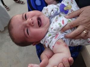 اعراض الجرب عند الاطفال واسباب الجرب بالصور