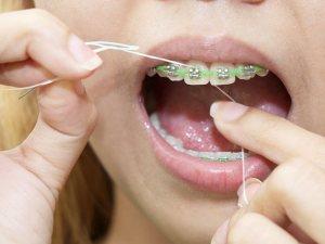 كيفية تنظيف تقويم الاسنان