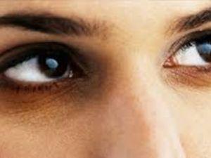 علاج الهالات السوداء تحت العين بالاعشاب