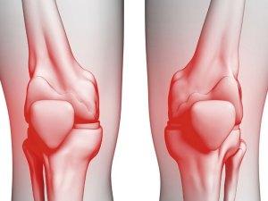 علاج خشونة الركبة بالاعشاب جابر القحطاني