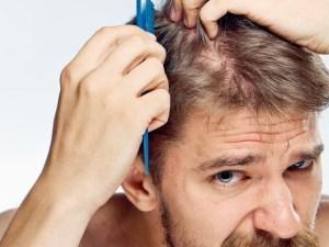 علاج و دواء تساقط الشعر بالاعشاب