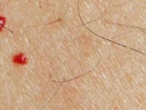 نقط حمراء على الجلد بحجم راس الدبوس
