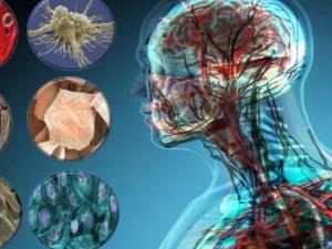 جميع الكائنات التالية عديدة الخلايا عدا