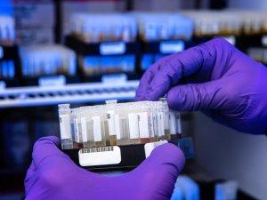 هل مرض الفطر الاسود معدي مثل كورونا معلومات مختصرة