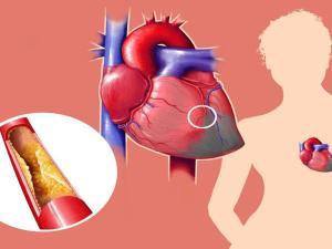 اعراض الازمة القلبية عند الشباب قبل الحدوث وطرق العلاج