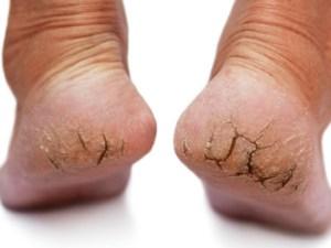 علاج تشققات الجلد