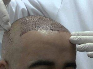 عملية زراعة الشعر في تركيا من الألف إلى الياء
